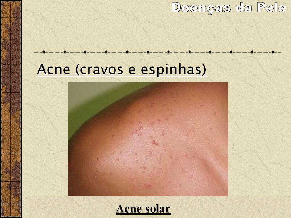 Doenças da Pele Acne (cravos e espinhas) Acne solar