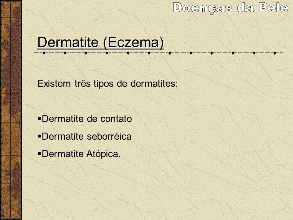 Doenças da Pele Dermatite (Eczema) Existem três tipos de dermatites: