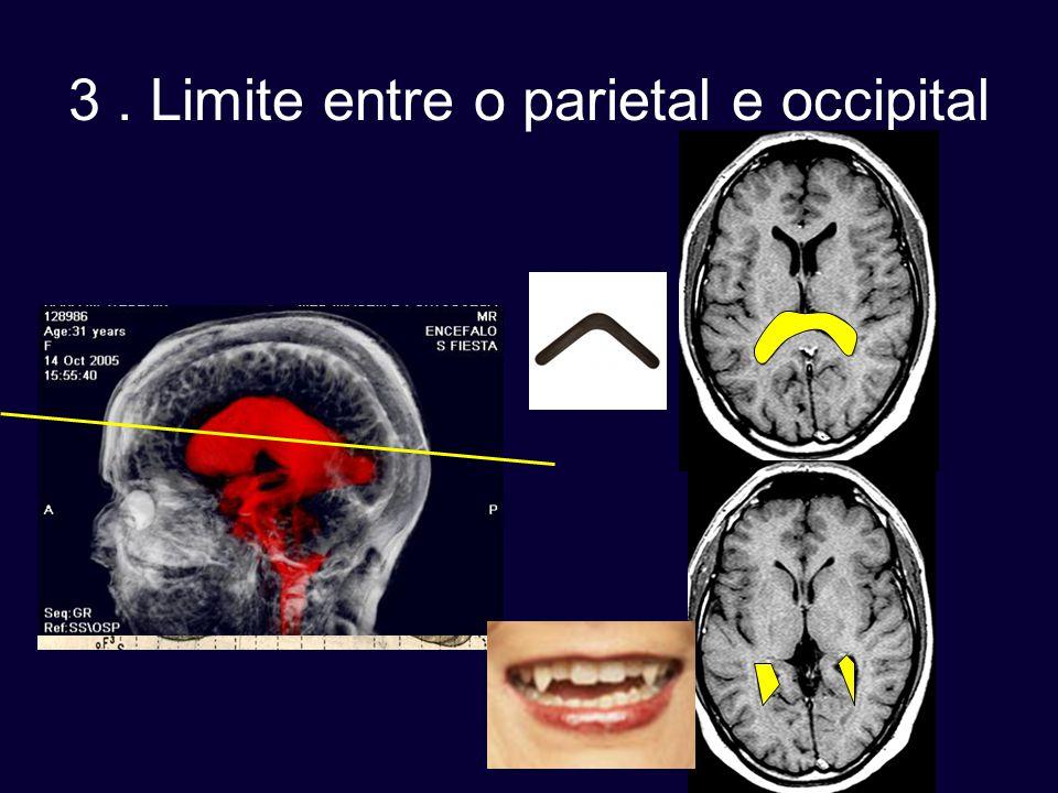 3 . Limite entre o parietal e occipital