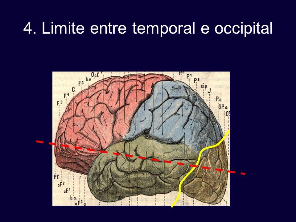4. Limite entre temporal e occipital