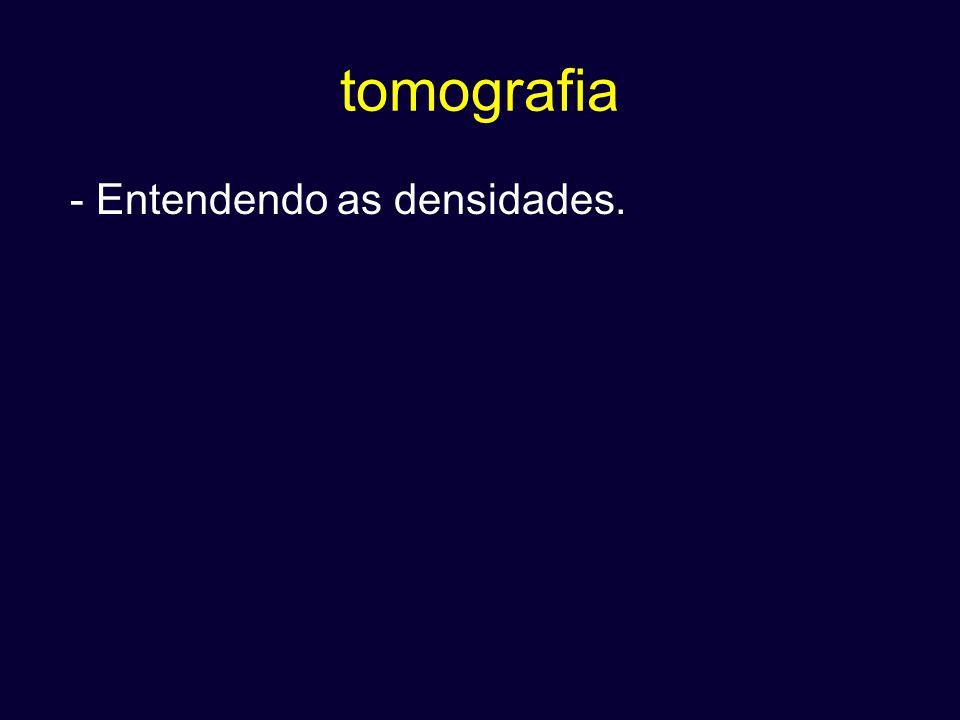 tomografia - Entendendo as densidades.