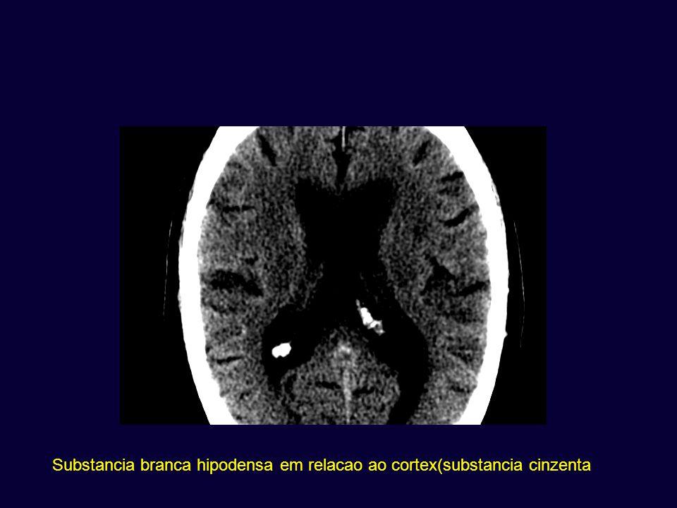 Substancia branca hipodensa em relacao ao cortex(substancia cinzenta