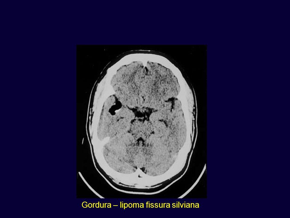 Gordura – lipoma fissura silviana