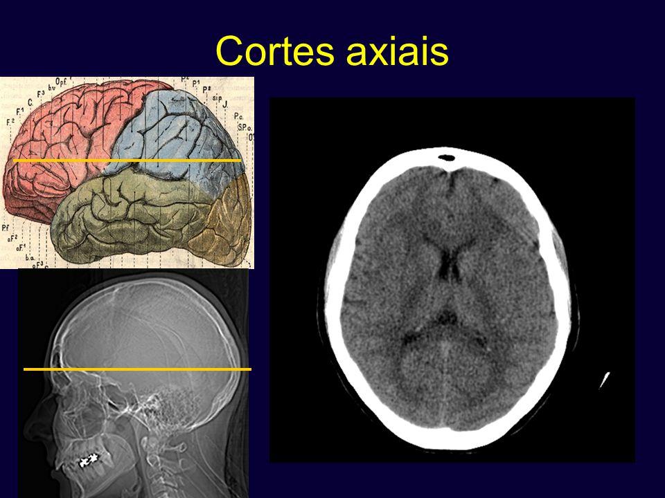 Cortes axiais