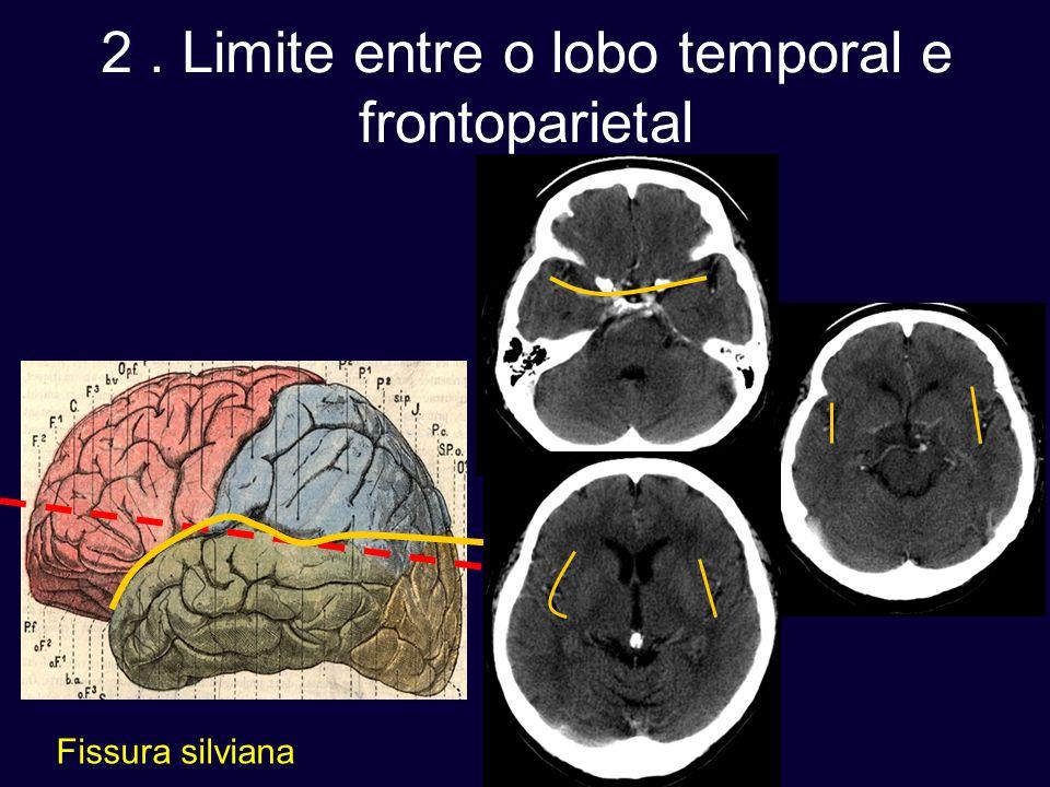 2 . Limite entre o lobo temporal e frontoparietal