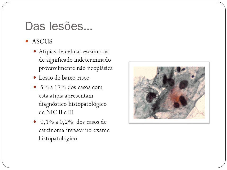 Das lesões... ASCUS. Atipias de células escamosas de significado indeterminado provavelmente não neoplásica.