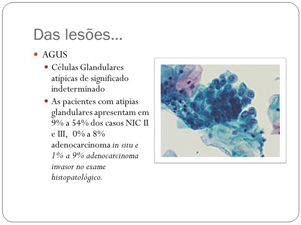 Das lesões... AGUS. Células Glandulares atípicas de significado indeterminado.