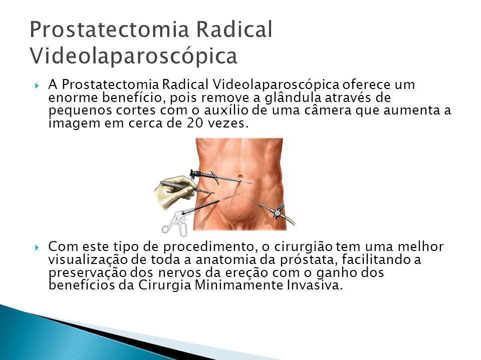 Prostatectomia Radical Videolaparoscópica