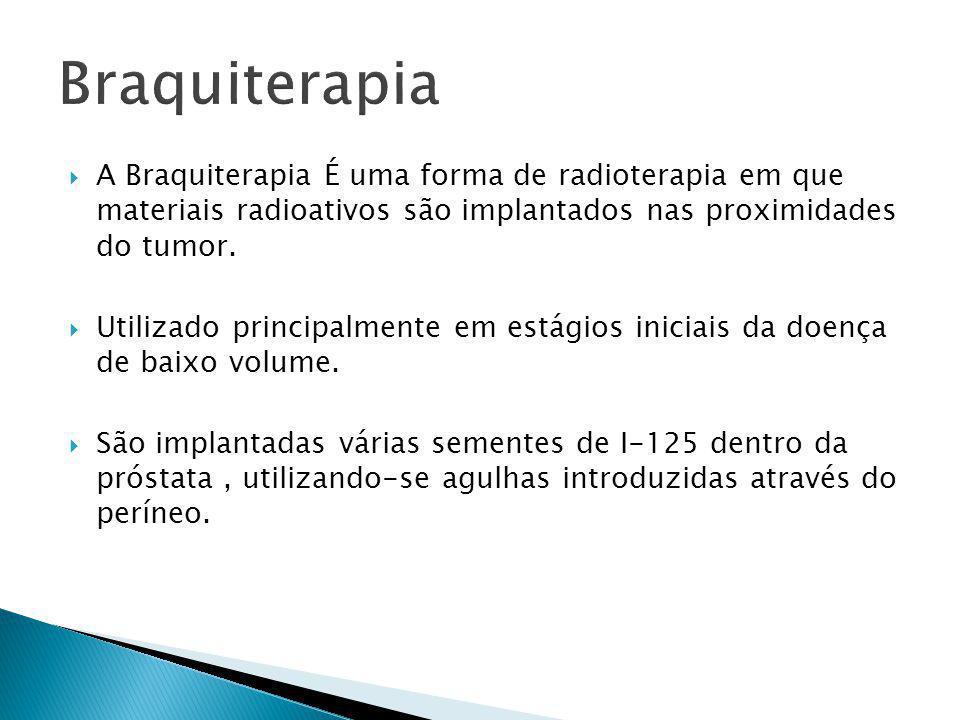 Braquiterapia A Braquiterapia É uma forma de radioterapia em que materiais radioativos são implantados nas proximidades do tumor.