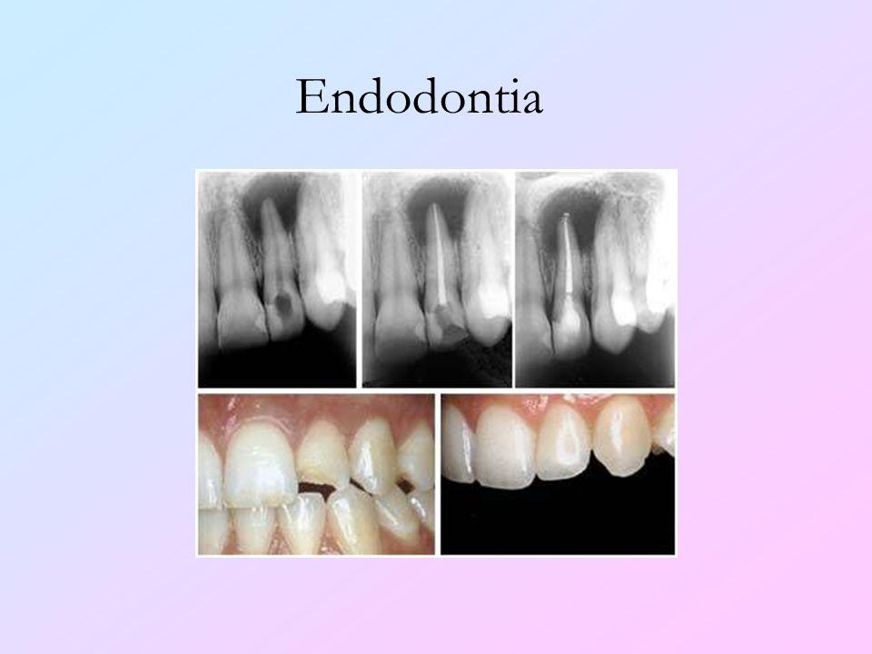Endodontia Esta especialidade refere-se ao tratamento de canal dos dentes acometidos por cáries profundas.
