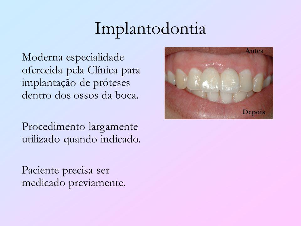 Implantodontia Antes. Moderna especialidade oferecida pela Clínica para implantação de próteses dentro dos ossos da boca.