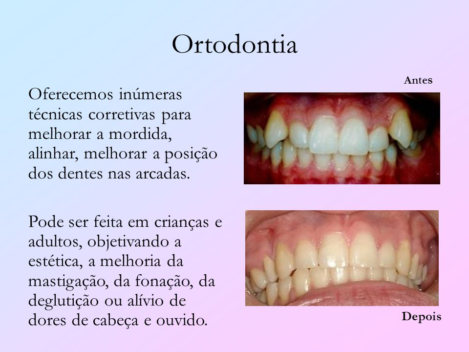 Ortodontia Antes. Oferecemos inúmeras técnicas corretivas para melhorar a mordida, alinhar, melhorar a posição dos dentes nas arcadas.
