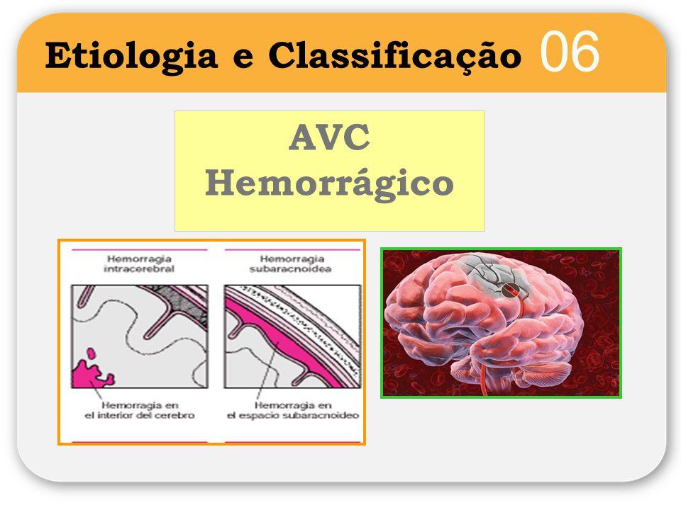 06 Etiologia e Classificação AVC Hemorrágico