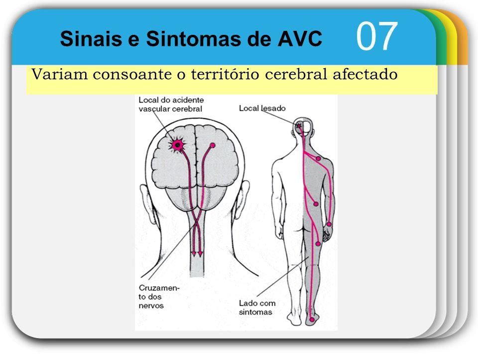 Sinais e Sintomas de AVC