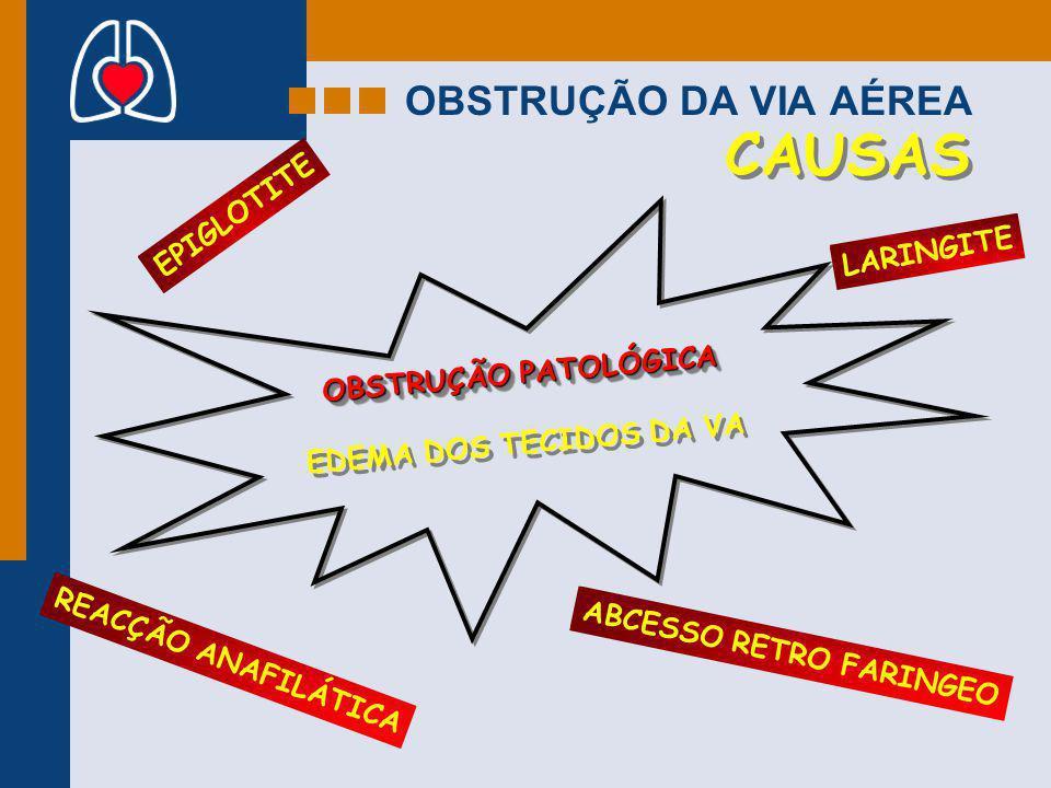 ABCESSO RETRO FARINGEO