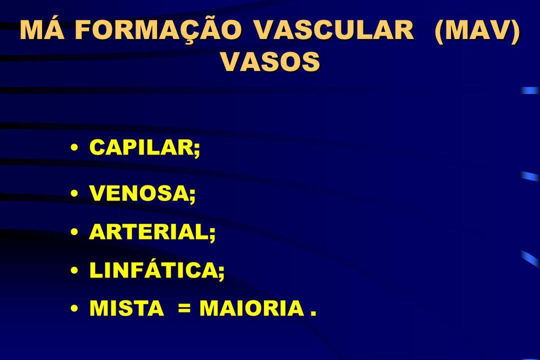 MÁ FORMAÇÃO VASCULAR (MAV) VASOS