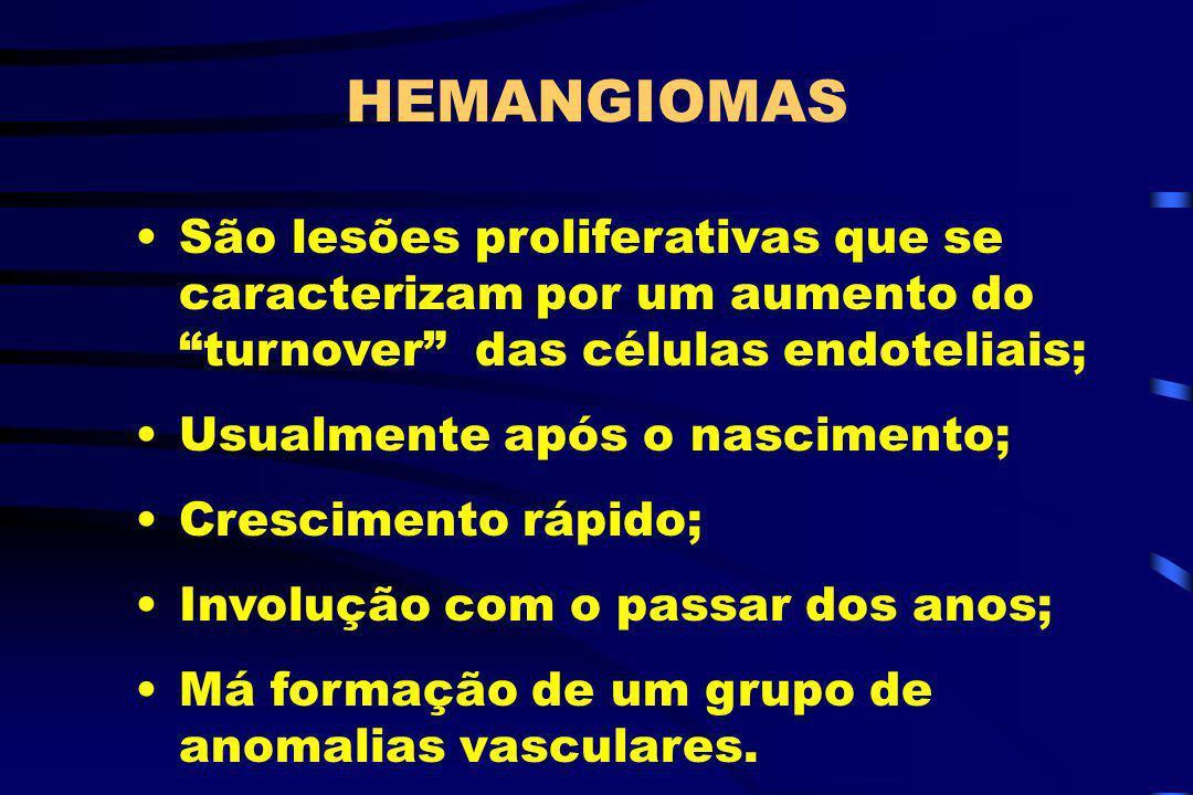 HEMANGIOMASSão lesões proliferativas que se caracterizam por um aumento do turnover das células endoteliais;