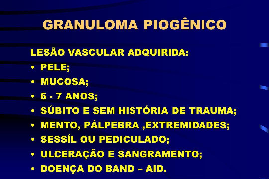 GRANULOMA PIOGÊNICO LESÃO VASCULAR ADQUIRIDA: PELE; MUCOSA;