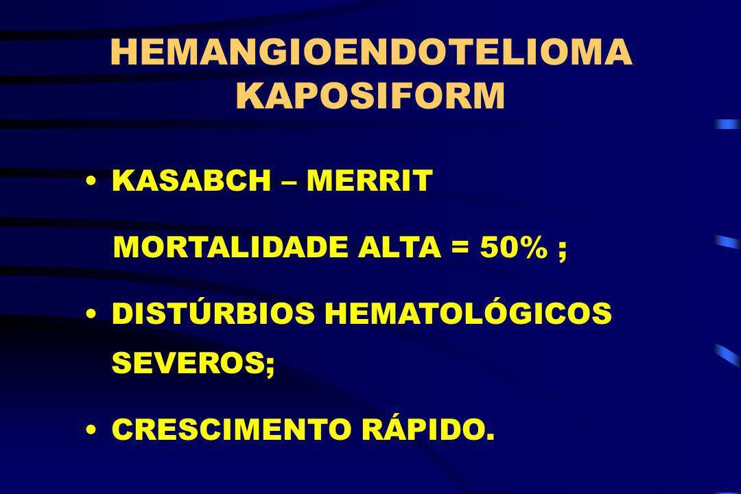 HEMANGIOENDOTELIOMA KAPOSIFORM