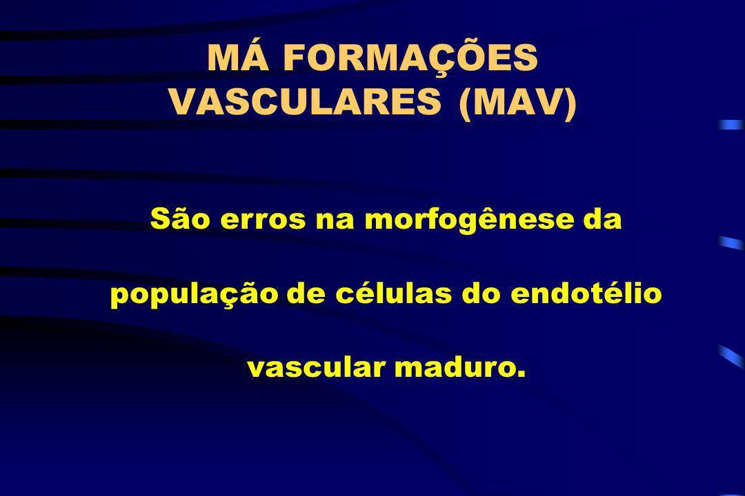 MÁ FORMAÇÕES VASCULARES (MAV)
