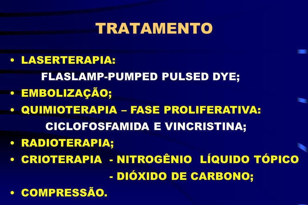 TRATAMENTO LASERTERAPIA: FLASLAMP-PUMPED PULSED DYE; EMBOLIZAÇÃO;