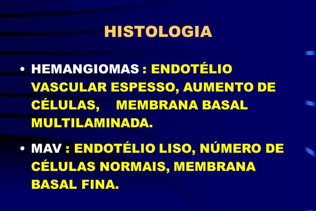 HISTOLOGIA HEMANGIOMAS : ENDOTÉLIO VASCULAR ESPESSO, AUMENTO DE CÉLULAS, MEMBRANA BASAL MULTILAMINADA.