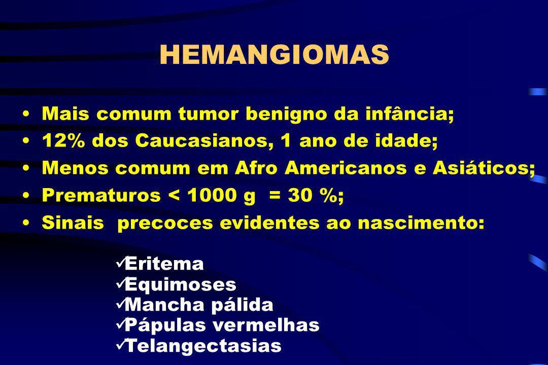 HEMANGIOMAS Mais comum tumor benigno da infância;