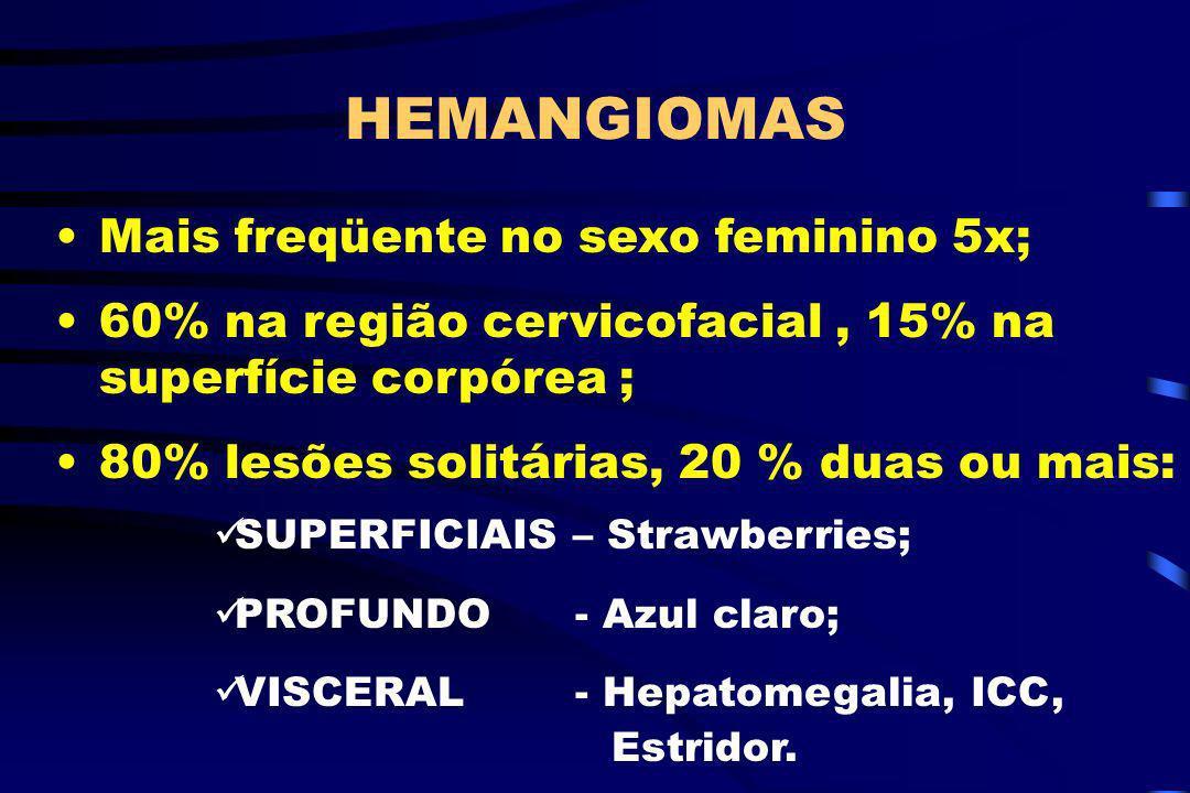 HEMANGIOMAS Mais freqüente no sexo feminino 5x;