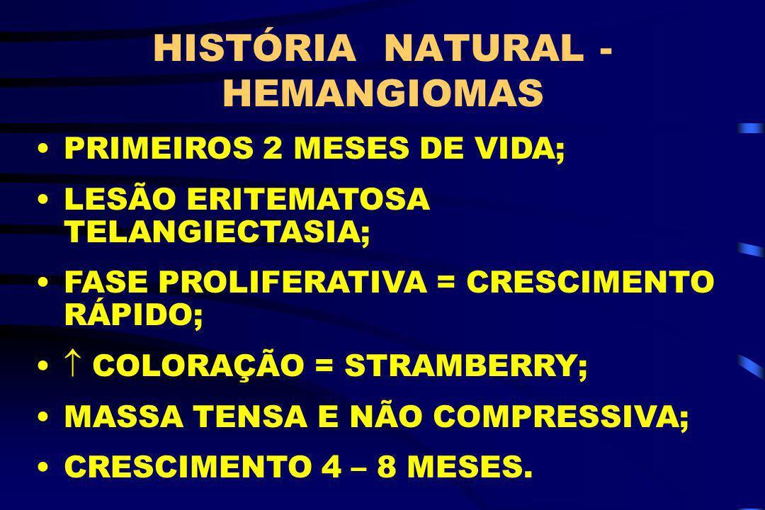 HISTÓRIA NATURAL - HEMANGIOMAS
