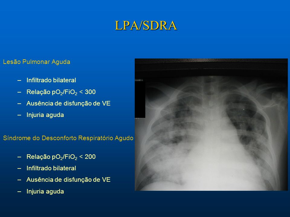 LPA/SDRA Lesão Pulmonar Aguda Infiltrado bilateral