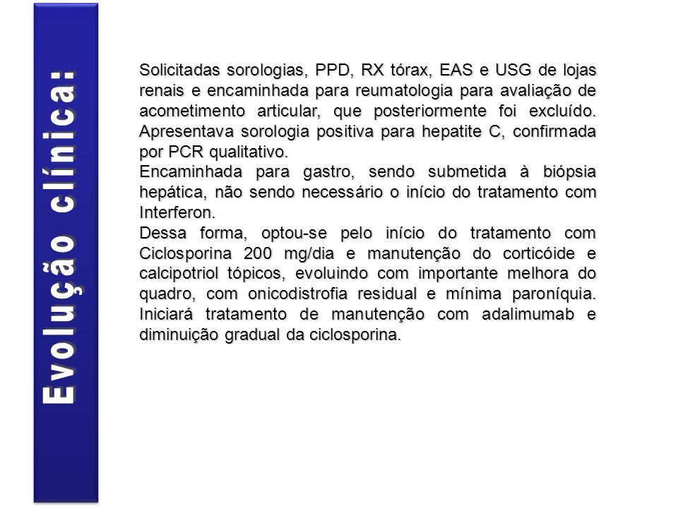 Solicitadas sorologias, PPD, RX tórax, EAS e USG de lojas renais e encaminhada para reumatologia para avaliação de acometimento articular, que posteriormente foi excluído. Apresentava sorologia positiva para hepatite C, confirmada por PCR qualitativo.