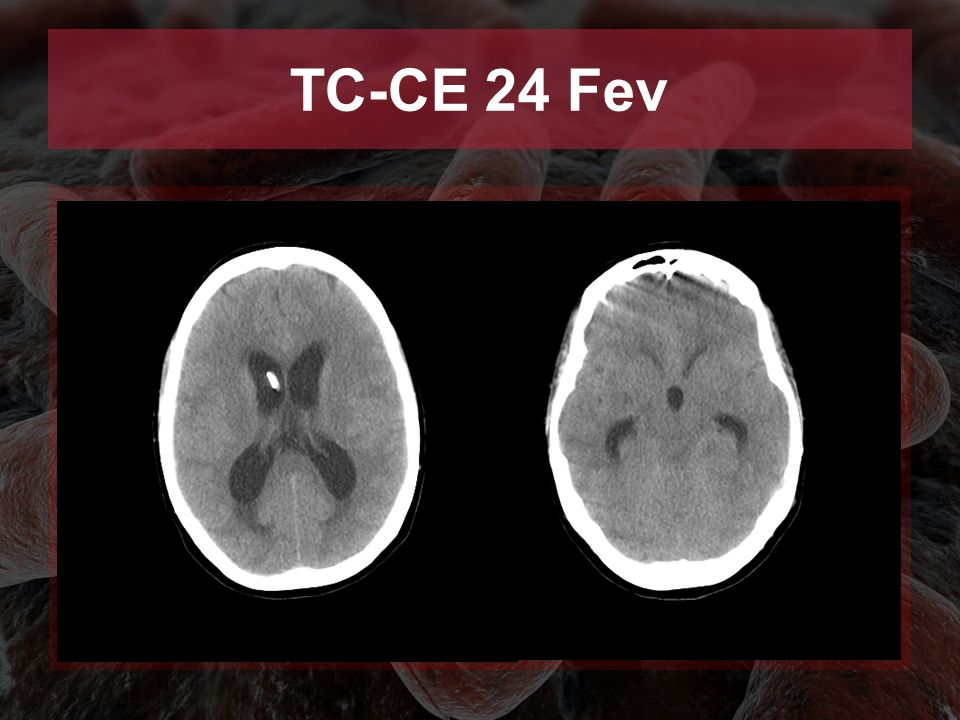 TC-CE 24 Fev