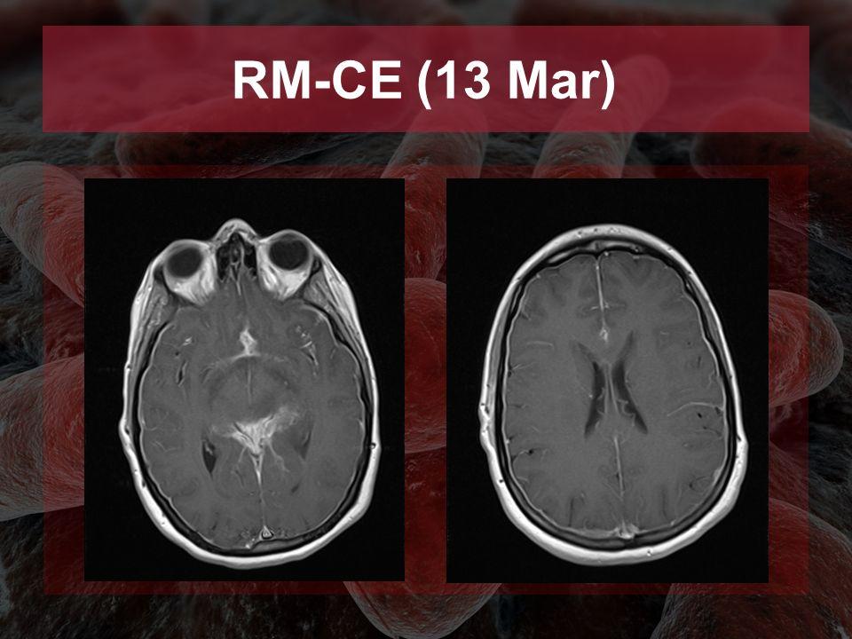 RM-CE (13 Mar)