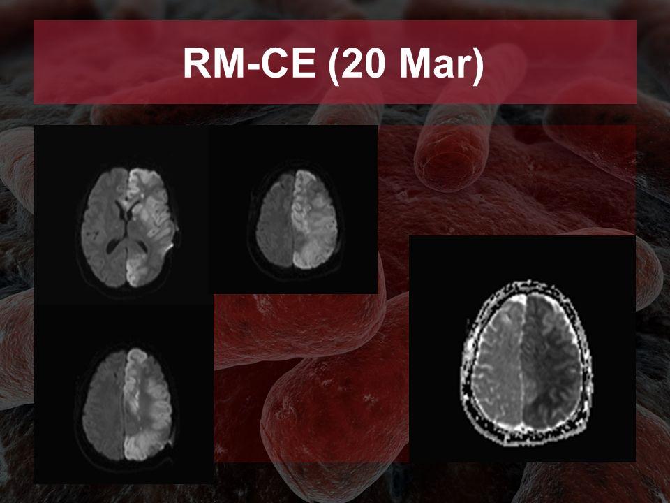 RM-CE (20 Mar)