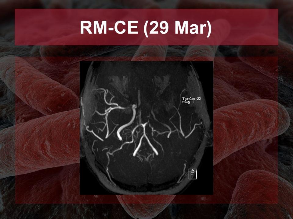 RM-CE (29 Mar)