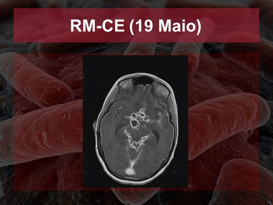 RM-CE (19 Maio)