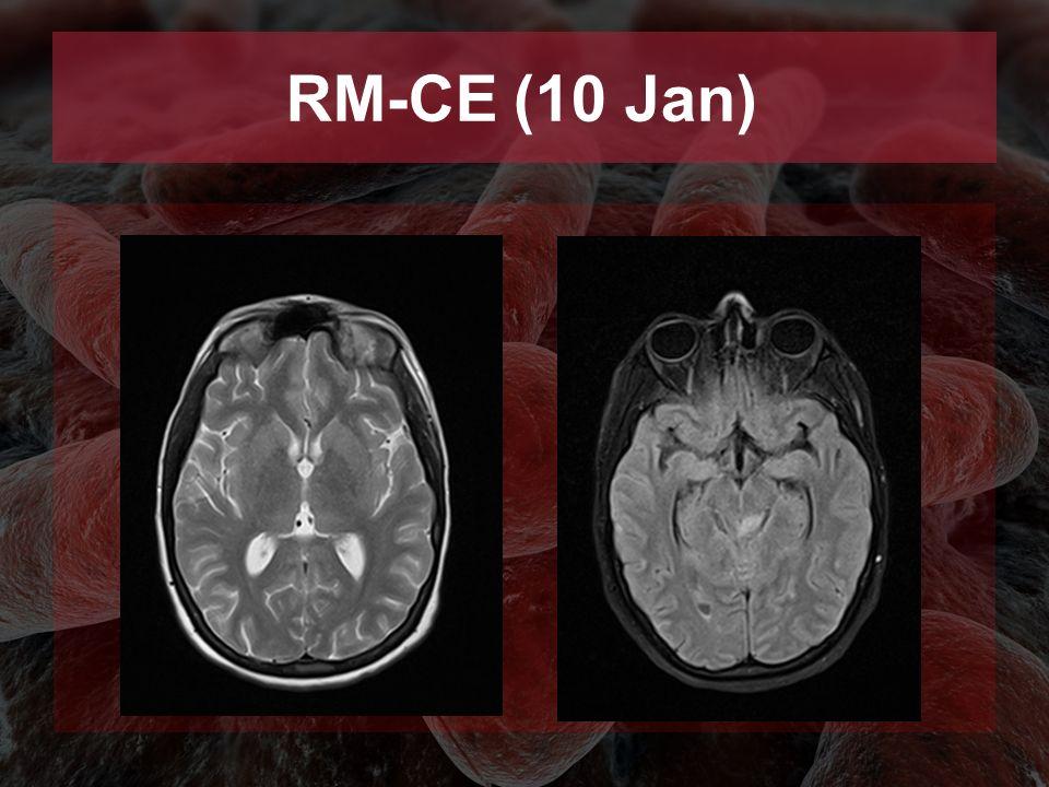 RM-CE (10 Jan)