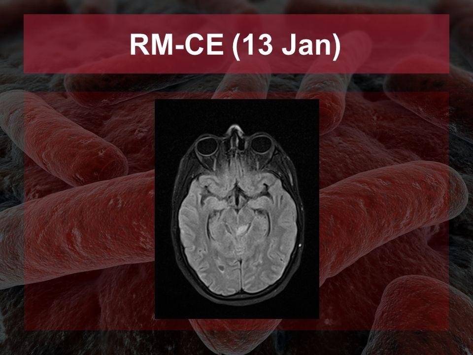 RM-CE (13 Jan)