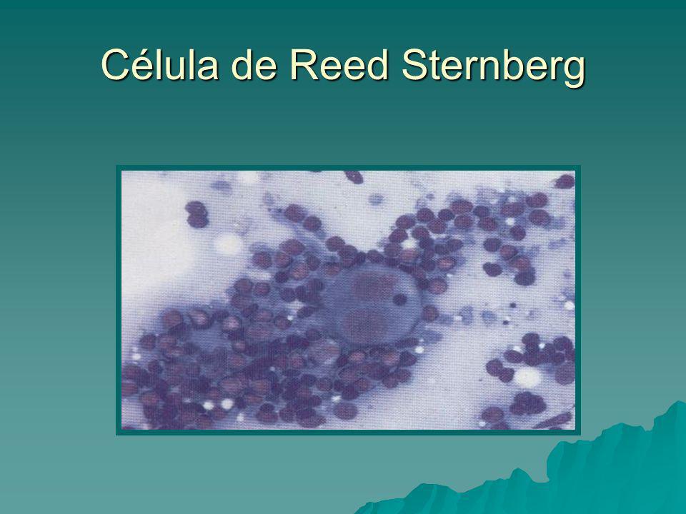 Célula de Reed Sternberg