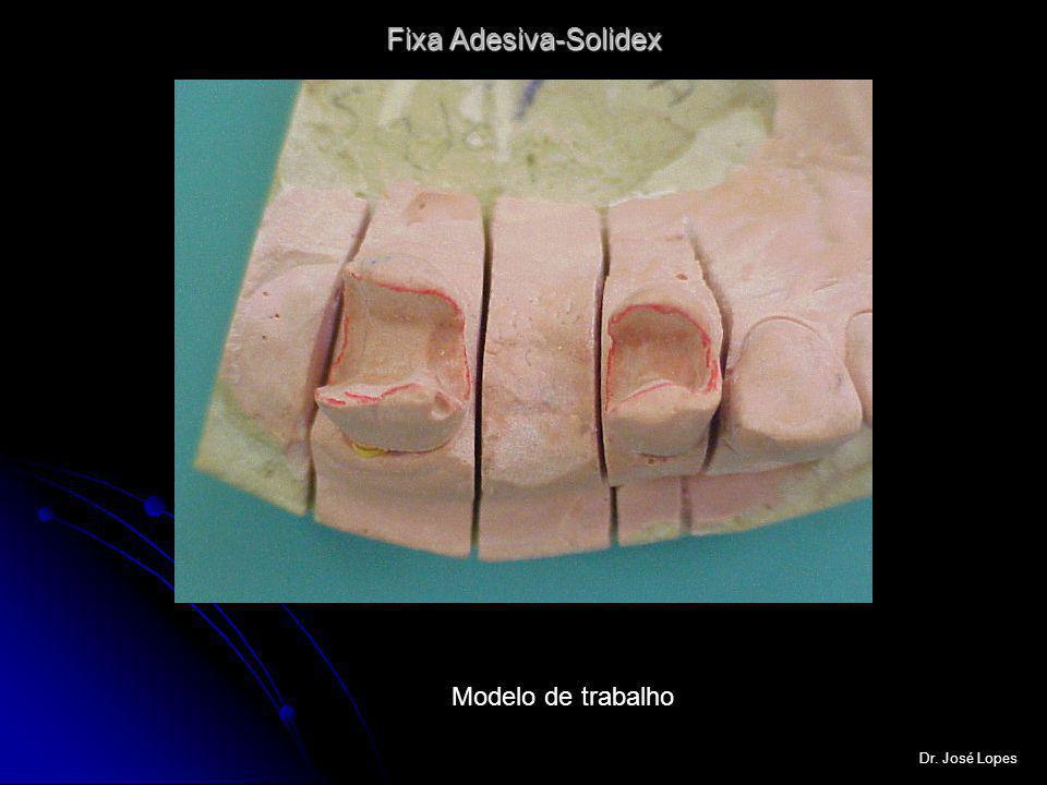 Fixa Adesiva-Solidex Modelo de trabalho Dr. José Lopes