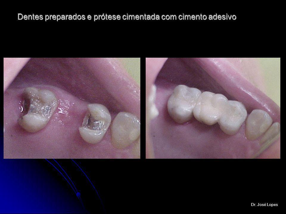 Dentes preparados e prótese cimentada com cimento adesivo