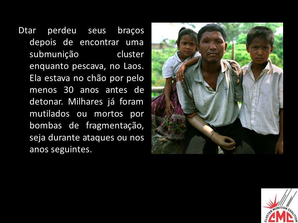 Dtar perdeu seus braços depois de encontrar uma submunição cluster enquanto pescava, no Laos.