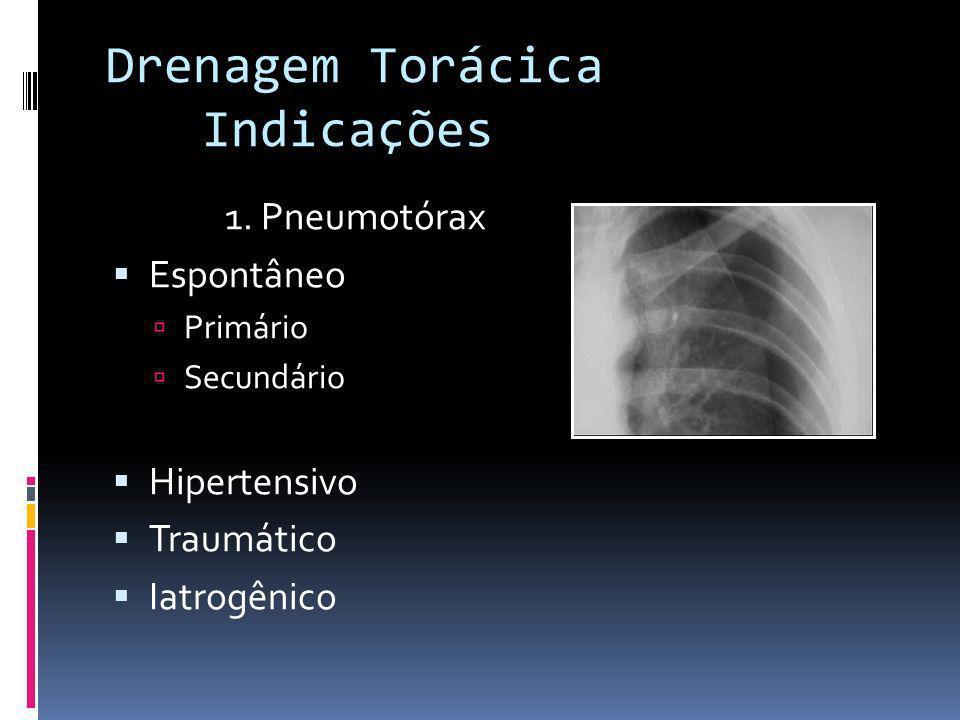 Drenagem Torácica Indicações 1. Pneumotórax Espontâneo Hipertensivo