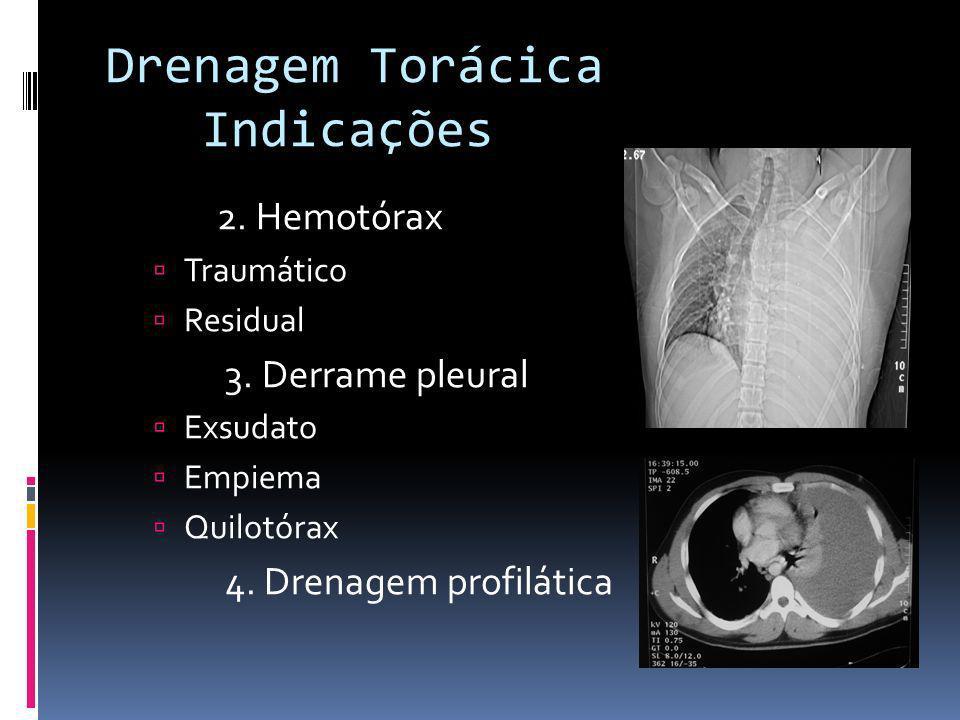 Drenagem Torácica Indicações 2. Hemotórax 3. Derrame pleural