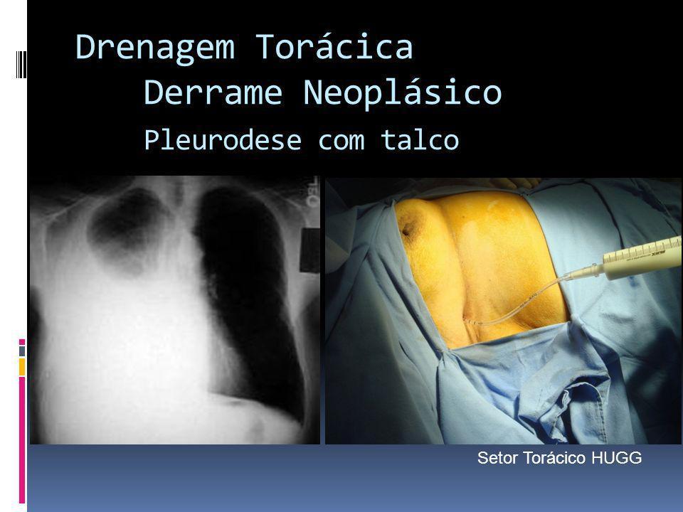 Drenagem Torácica Derrame Neoplásico Pleurodese com talco