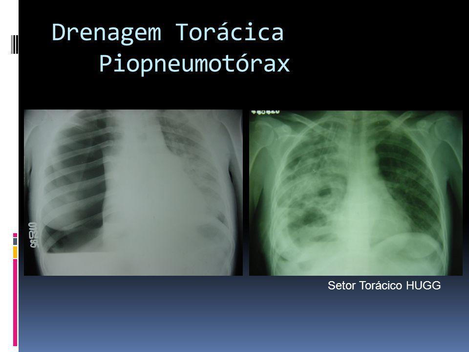 Drenagem Torácica Piopneumotórax Setor Torácico HUGG
