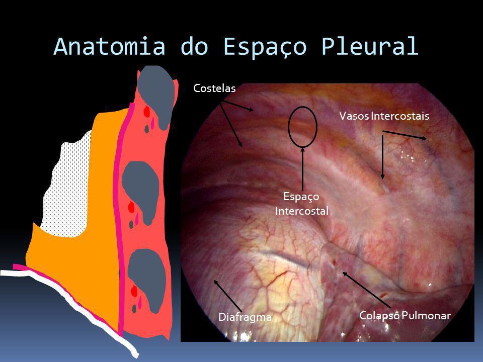 Anatomia do Espaço Pleural