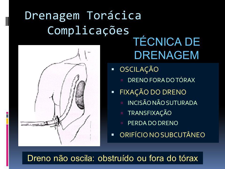 Dreno não oscila: obstruído ou fora do tórax
