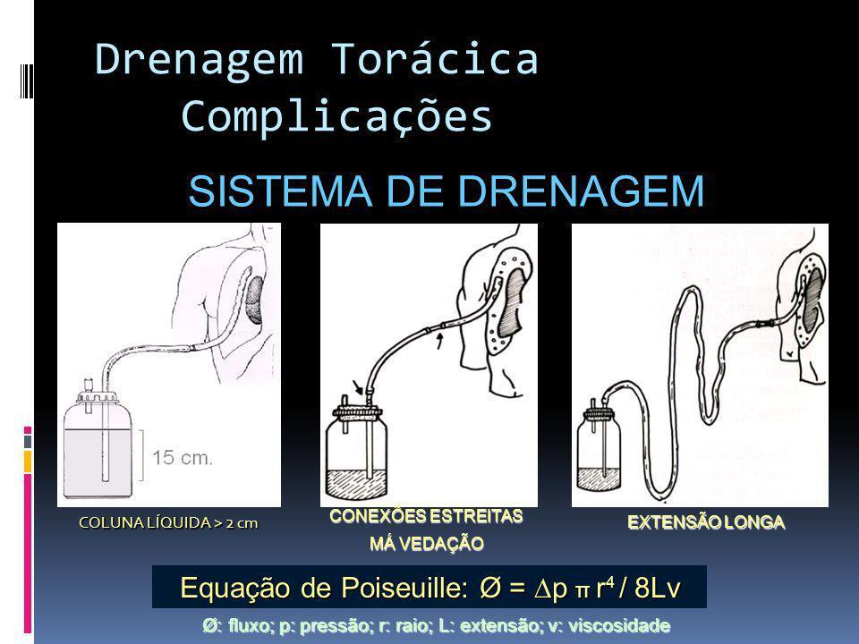 Drenagem Torácica Complicações SISTEMA DE DRENAGEM