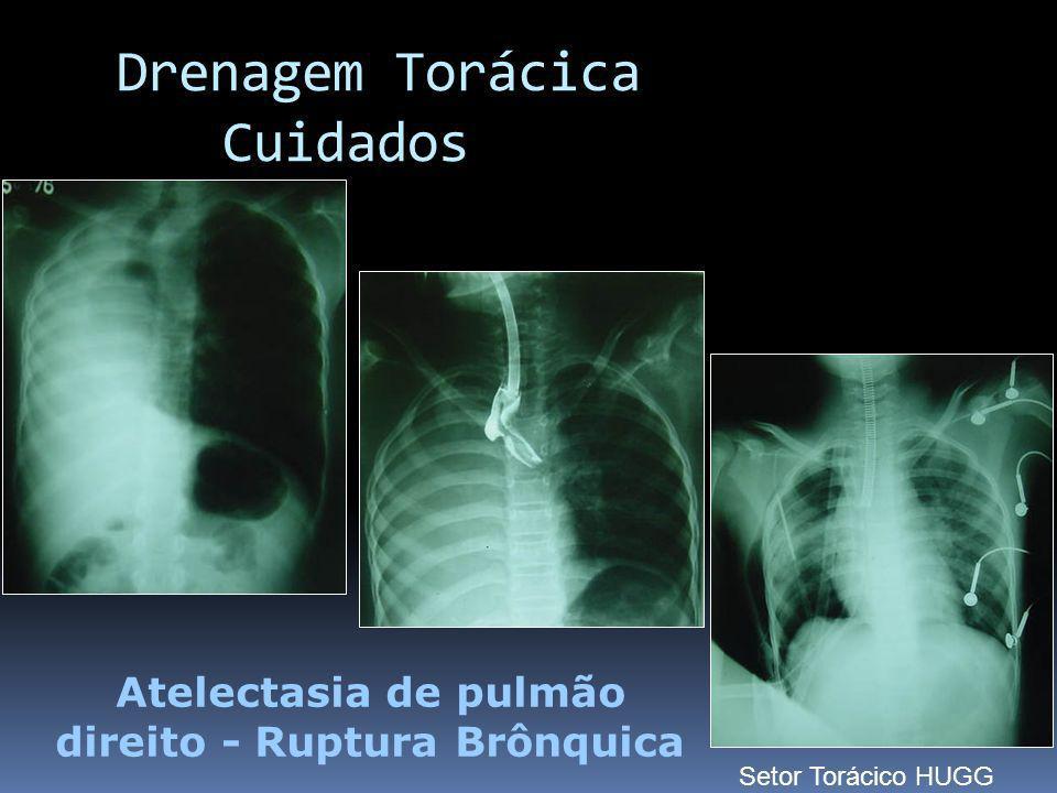 Atelectasia de pulmão direito - Ruptura Brônquica